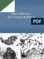 04. Stom - Inflamatia