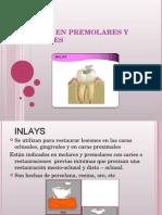 Inlays en Premolares y Molares