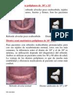 dientesanatmicospoliplanos-130319201616-phpapp02