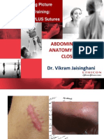 Abdominal Wall Anatomy & Fascia Closure_sept