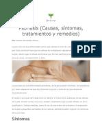 Psoriasis (Causas, síntomas, tratamientos y remedios)