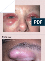 Bolile Pleoapei&Conjunctiva