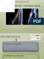 Epicondilitis y Epitrocleitis
