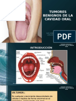 Tumores Benignos  de La Cavidad Oral