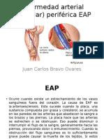 Enfermedad Arterial (Vascular) Periférica EAP