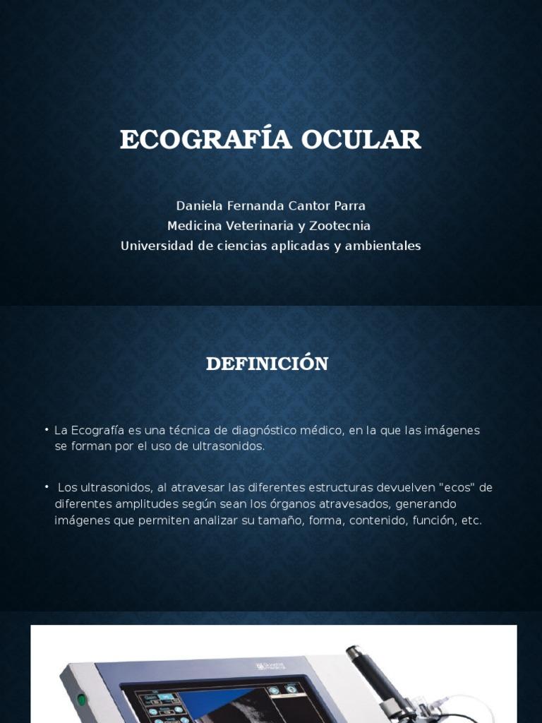 Ecografía de Ojo