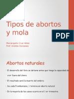 tipos de abortos y mola