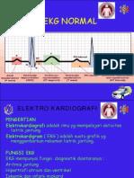 EKG dan rekam jantung Normal