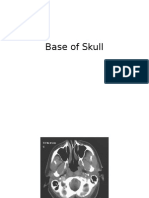 Axial CT scans in head and neck
