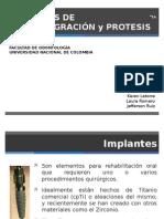 Implantes dentales.pptx