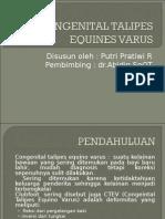 Congenital Talipes Equines Varus