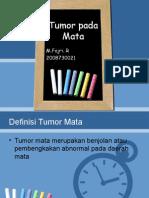 Ppt Tumor Mata