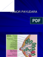 1 TUMOR PAYUDARA.pdf