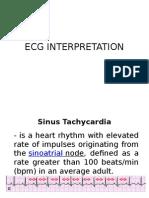 Ecg Interpretation Lecture 2014