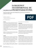 Melanoma Maligno y Diagnostico Diferencial