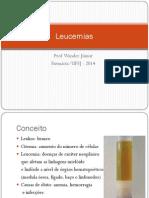 Leucemia