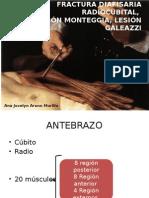 Fractura Diafisaria Radiocubital, Lesion Monteggia, Lesion