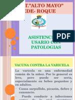 Vacuna de La Varicela