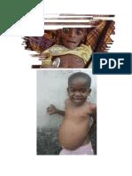 Bayi kekurangan nutrisi