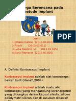 Kb Implant
