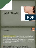 nodulotiroideo susety