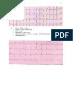 Soal Latihan I EKG Jan 2014