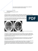 Astrocytoma s