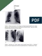 Gambar Radiologi Zoraya
