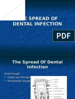 The Spread of Dental Infection (1)