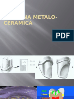 coroana metalo ceramica