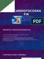 Cardiotocografía