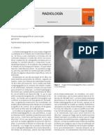 Histerosalpingografia en Embarazo