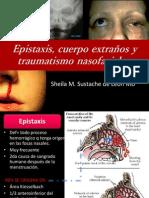 Epistaxis, Cuerpo Extraños y Traumatismo Nasofaciales