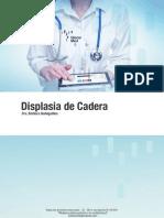 Displasia de cadera.pdf