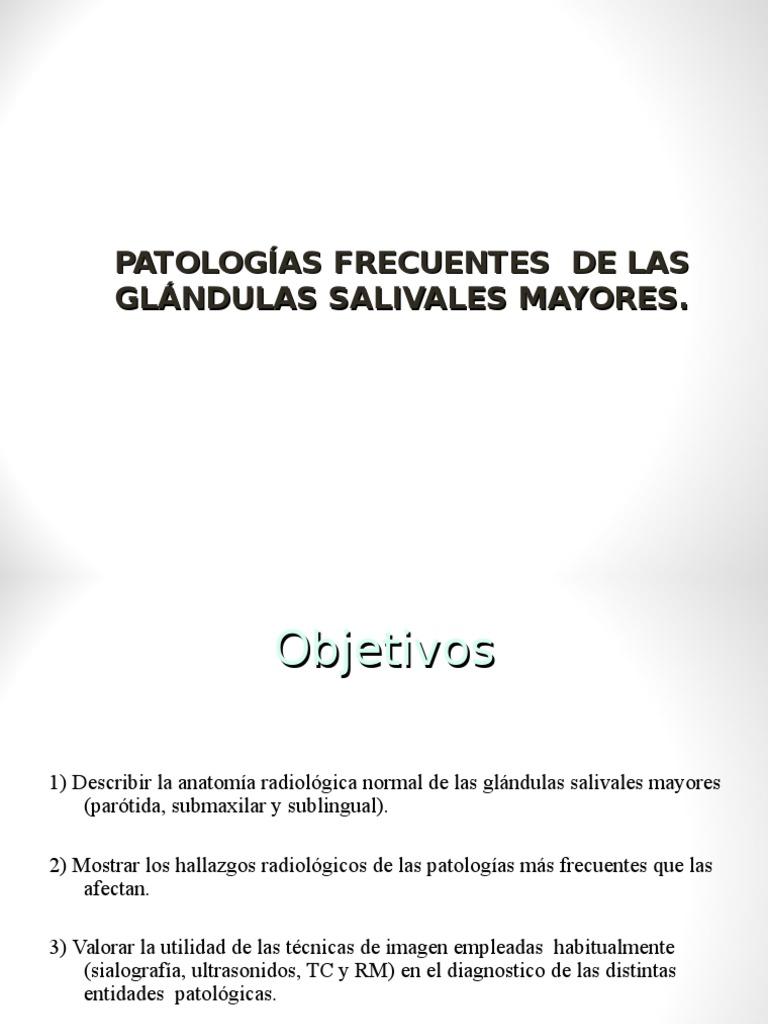 PATOLOGÍA GLANDULAS SALIVALES