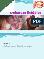 EMBARAZO ETOPICO
