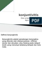 konjuntivitis