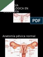 Patología Ginecológica en Ecografía