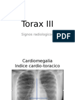 Signos Radiológicos Tórax