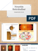 Neuritis Retrobulbar