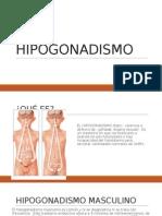 hipogonadismo