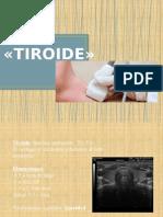 presentacion tiroide andres glz