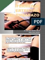 HIPERTENSION EN EL EMBRAZO (1).pptx