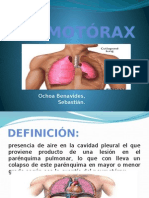 Neumotórax y Sindrome Mediastinico