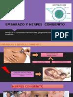 Embarazo y Herpes