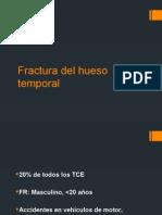 Fractura Del Hueso Temporal