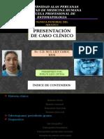CASO ADULTO EVE.pptx