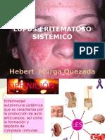 Lupus Eritomatoso Sistemico