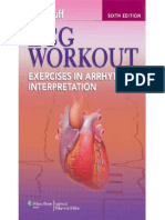ECG Workout - Excercises in Arrhythmia Interpretation