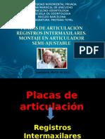 5prelacionesintermaxilares-140504123355-phpapp02